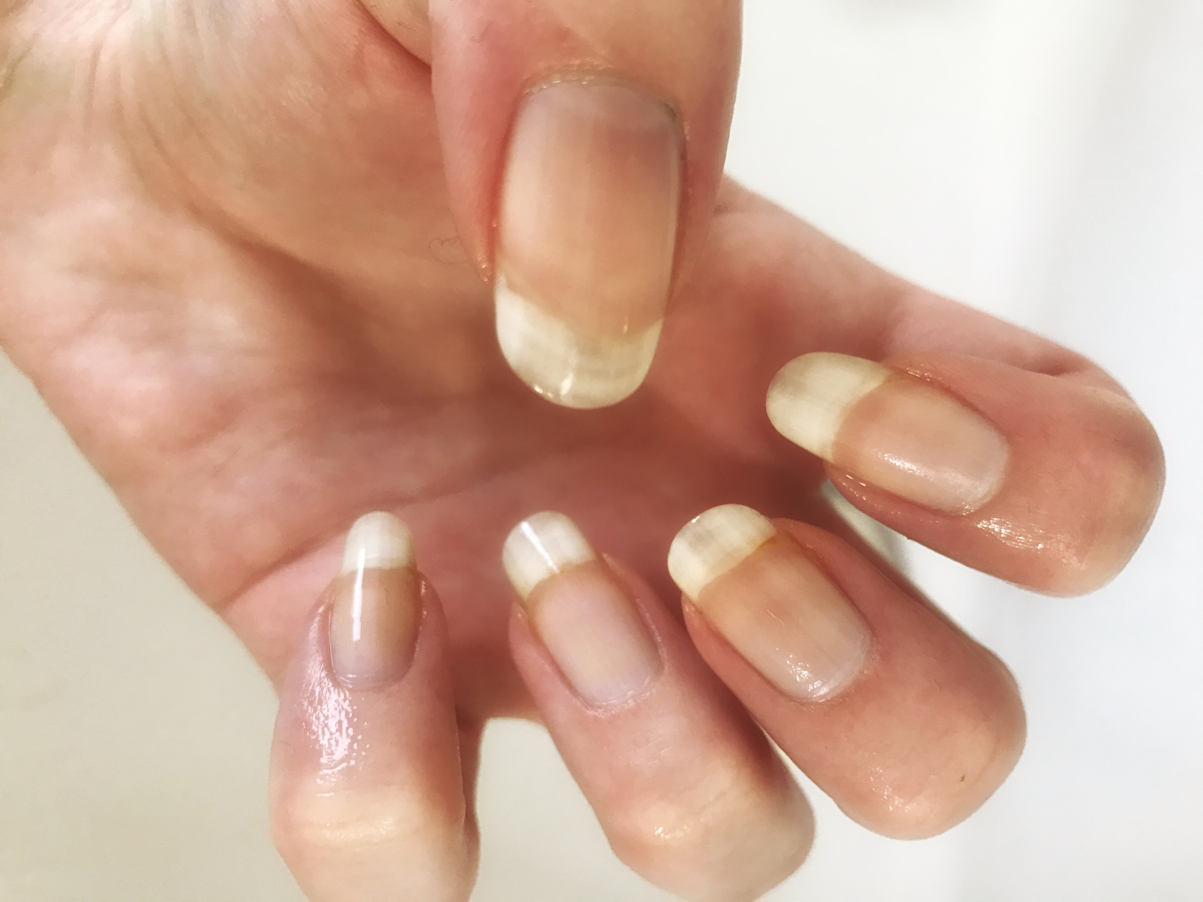 Stained Nails From Nail Varnish How To Remove Lady Mckew
